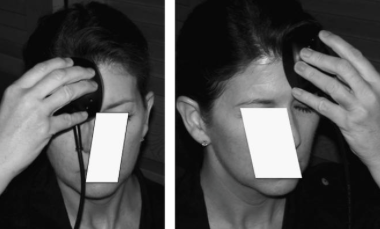 Transcranial Light Stimulation.png