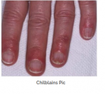 Chilblains picture 1.PNG