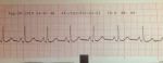 ecg20.08.19a.png