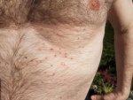 Spots on skin 1.jpg