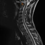 Cervical_MRI_JES.png