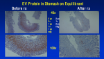 VP1 Protein before and after oxymatrine.png